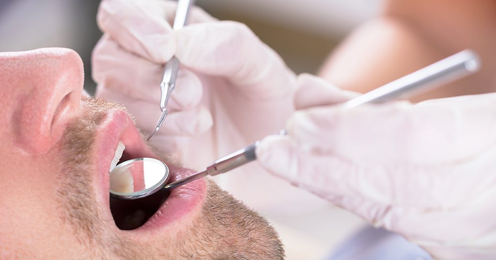 How Do I Know If I Have Gum Disease?